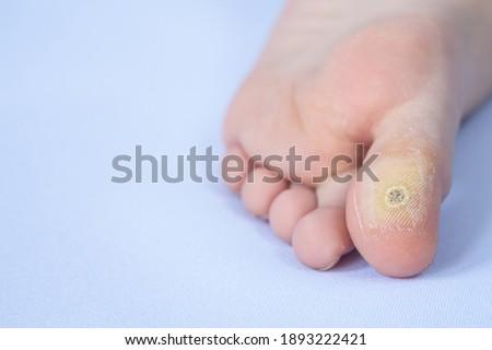 close-up of plantar wart. Macro shot of human papilloma on the foot. Zdjęcia stock ©