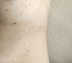 Close up of Seborrheic Keratosis on women's ski. Seborrheic keratoses are usually brown, black or light tan. They usually appear on the head, neck, chest or back.