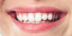 Close up of smile with white healthy teeth