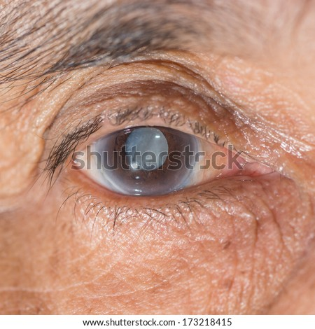 Close up of the senile cataract during eye examination.