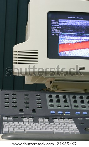Close-up of the ultrasound machine control panel and monitor with Color Doppler image