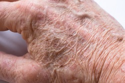 Close up of the wrinkled skin on the hand of an older man with some lesions of actinic keratosis or sunspots