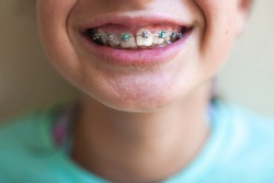 Close up of Tween girls mouth after getting braces