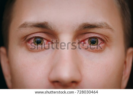 Close up of two annoyed red blood eyes of male affected by conjunctivitis or after flu, cold or allergy. Concept of health, disease and treatment. Copy space for advertisement. With place for text.