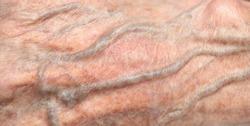 Close up of vein under skin of senior 90 year old man's wrinkled skin, white Asian women.
