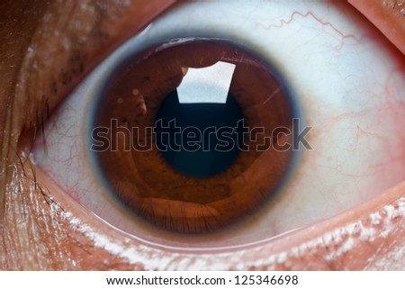 close up of wide open brown eye