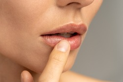 Close up of woman applying moisturizing nourishing balm to her lips with her finger to prevent dryness and chapping in the cold season. Lip protection.