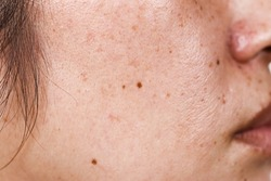 close-up of woman's face with large pores black dots and freckles on the surface of the face