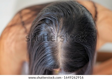 Close up of woman with thinning hair on head.