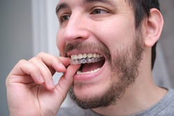 Close up of young latin man adjusting orthodontic silicone trainer or invisible braces aligner. Mobile orthodontic appliance for dental correction.