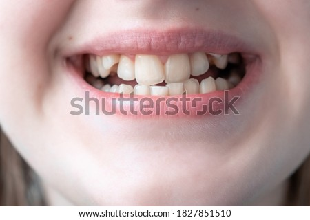 Close up of young woman's face with crooked teeth. Teeth before install braces. Teeth need ortodonti.