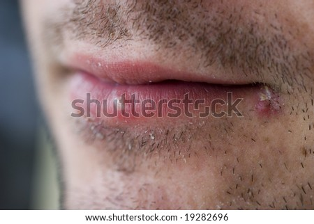 close up on a man with two cold sores on his lips