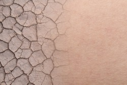 close-up on dry woman skin texture with dry soil