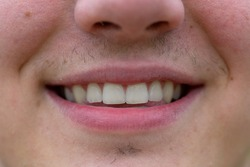 Close up on the teeth of an unshaven smiling young man in a frontal view outdoors in a garden or park