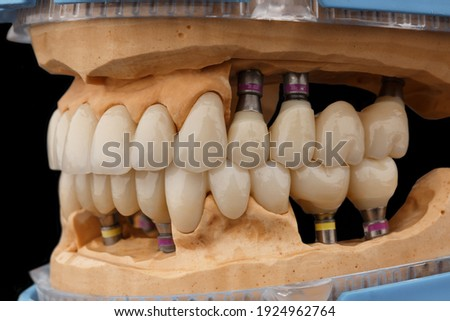 Close-up photo of dental jaws prosthesis on black glass background. Artificial jaws with veneers and crowns. Tooth recovery with implant. Dentistry conceptual photo. Prosthetic dentistry. Photo stock ©