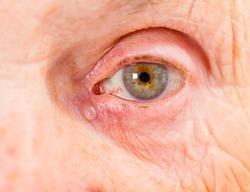 Close up photo of elderly woman eye