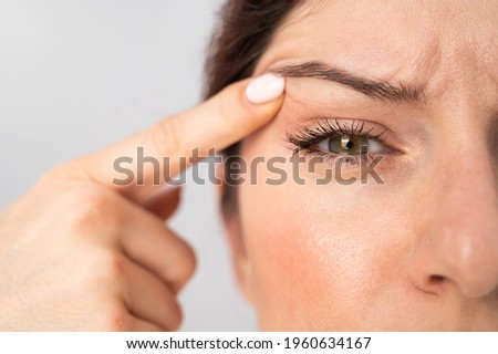 Close-up portrait of Caucasian middle-aged woman pointing to the wrinkles on the upper eyelid. Signs of aging on the face ストックフォト ©