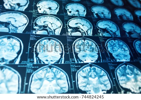 Close up series of a magnetic resonance scan with human head on it. X-ray ct medicine concept