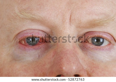 Close up shot from  man\'s wrinkled tired irritated bloodshot eye.