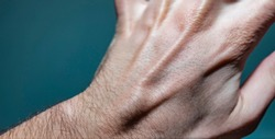 Close up shot of a white caucasian man left hand with a ganglion cyst lump stuck between the dorsal digital nerves or ulnar nerve.