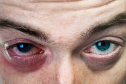 Close up shot of black eye on man face