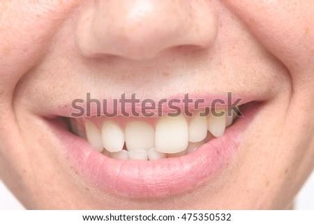 close up shot of crooked teeth