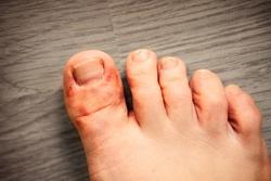 Close up skin athlete's foot psoriasis fungus