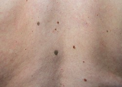 close up the black spot on male human back skin. Melanoma  is a type of skin cancer develops on human skin from the pigment-producing cells melanocytes. Risk to be skin cancer.