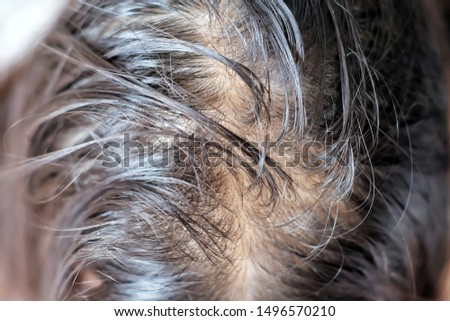 Close up thin hair on scalp of head woman.