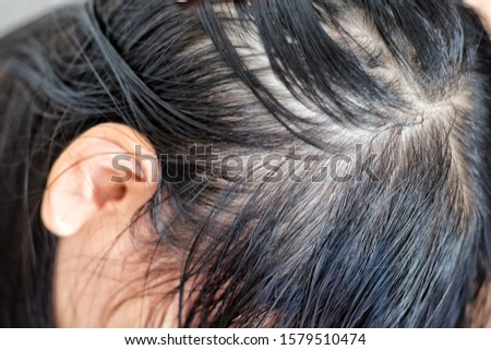 Close up thin hair on scalp of head women.