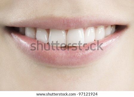 Close up view of a young, fresh, healthy smile.