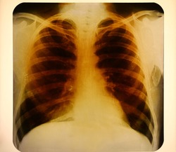 Close up vintage roentgenogram or photofluorogram (fluorogram) with ribcage and lungs