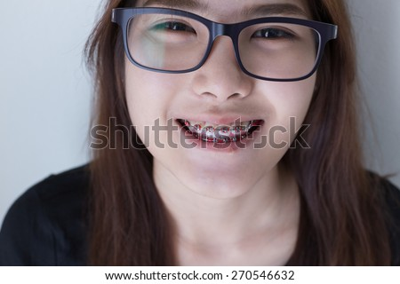 Close up  Young asian girl smiling and glasses in black shirt