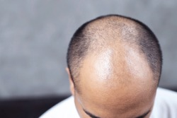 Close up young man concerned with serious hair loss. bald head thin and scalp and broken hair. concept healthcare. glabrous