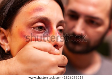 Close upf woman with bruises because of agressive husband. Violent aggressive husband abusing injuring terrified helpless, vulnerable, afraid, beaten and panicked wife. Stock photo ©
