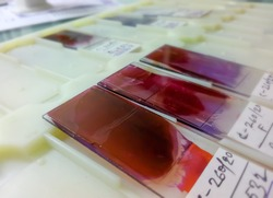 Close view of Histopathology slides stained with leishman stain, displayed and ready for microscopy with selective focus on slides. Cytopathology, Histology.