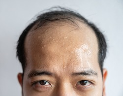 Closed portrait of Asian man forehead with sweating on his forehead cause of hot weather or etc. Sweat is actually the body's built-in cooling system when your body temperature rises.