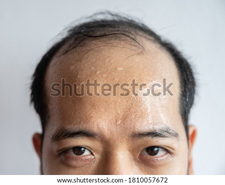 Closed portrait of Asian man forehead with sweating on his forehead cause of hot weather or etc. Sweat is actually the body's built-in cooling system when your body temperature rises. Photo stock ©