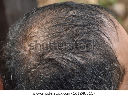 Closed up man head nearly bald or less hair
