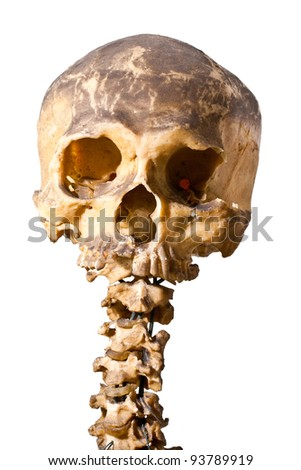 Closed up of grunge human skull - stock photo