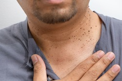 Closed up the Skin Tags or Acrochordon on neck man on white background. Health care concept