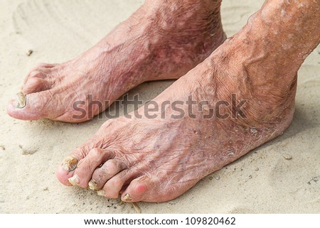 Closeup aching legs of an old woman in the sand
