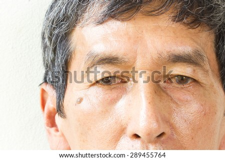 Closeup asian old man face on white background. His eyes are Pinguecula.