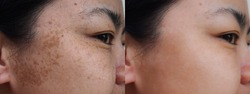 Closeup asian woman face before and after dark spot melasma  pigmentation skin facial treatment. Problem skincare and health concept.