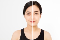 Closeup before after asian woman face. Before-after cosmetic procedures. Skin care wrinkled face, dark circles under eyes. Before-after anti-aging facelift treatment. Facial skincare beauty contouring