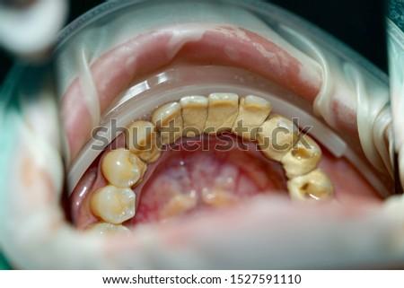 closeup dirty teeth with tartar ( dental calculus )