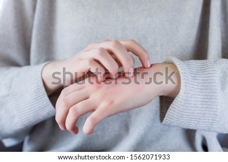 Closeup girl is scratching her hand with nails. Reddened, inflamed body parts causes discomfort and itching. Young woman is suffering from bouts of allergies. Dermatological skin diseases concept. Stockfoto ©
