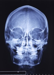 closeup image of classic xray image of skull