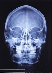 closeup image of classic xray image of skull
