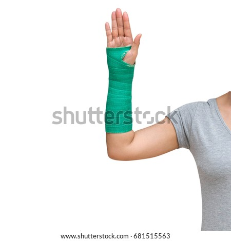 Closeup of a broken arm in a cast isolated on white background. #681515563